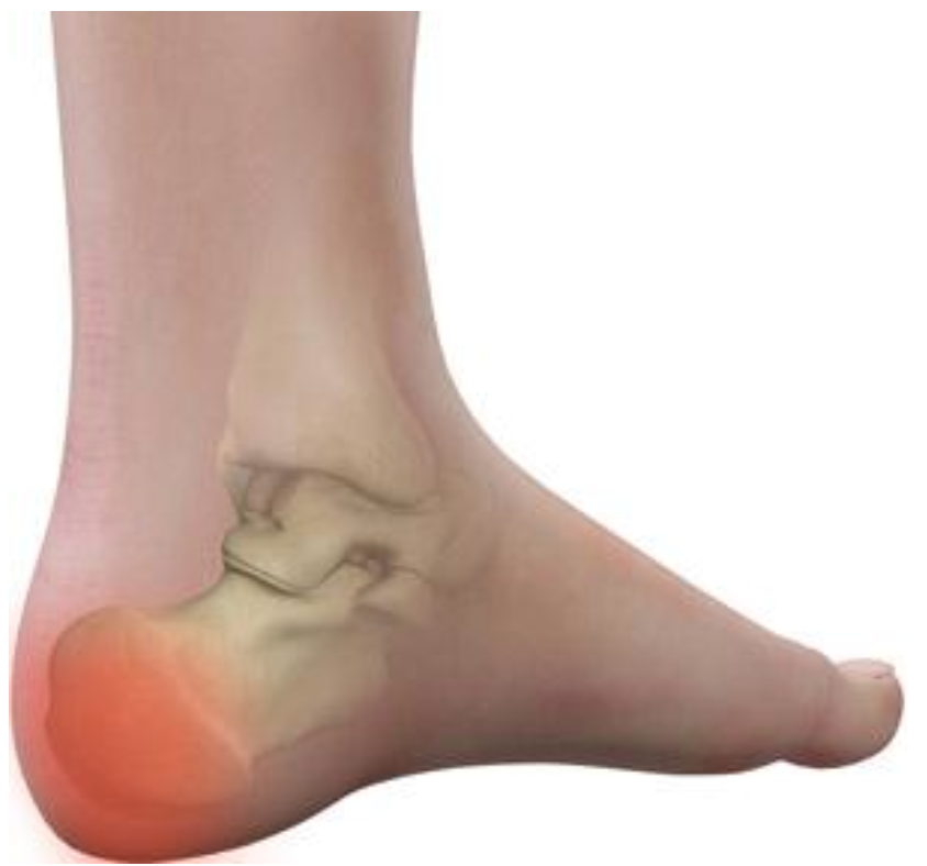 Physical therapy heel pain treatment for pain in heel of foot