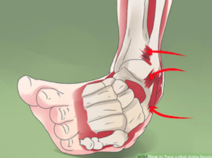What To Do For Ankle Sprains And How To Return To Sports Afterwards