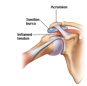 Top 3 Causes of Shoulder Pain